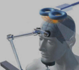 Transcranial Magnetic Stimulation (MagPro R30)