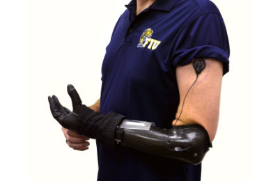 Prosthetic Hand system